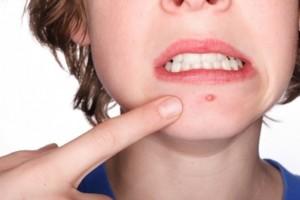 Изсмукване на гной от цирей или рана