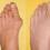 Смес бореща се с деформирани кости на ръцете и краката