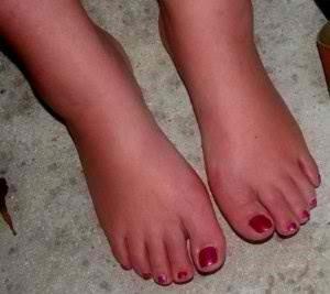 Облекчете болката при подути крака