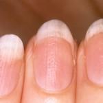 Силициев двуокис за заздравяване на ноктите