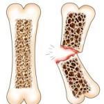 Остеопороза - заболяване на костите