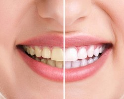Удачен домашен метод за избелване на зъби