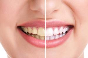 Избелване на зъби у дома