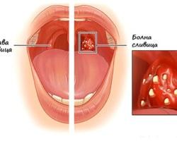 Сполучливи рецепти за лечение на гнойна ангина