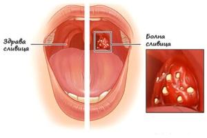 Лечение на гнойна ангина