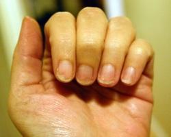 Билките на помощ при лесно чупливи нокти
