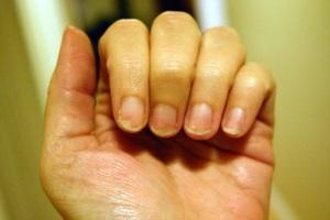 Домашни рецепти при чупливи нокти