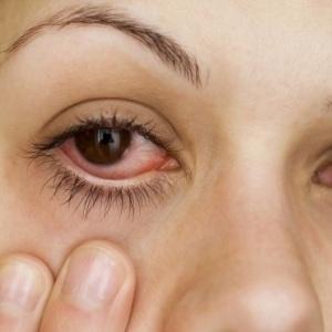 Рецепти от народната медицина при зачервени очи