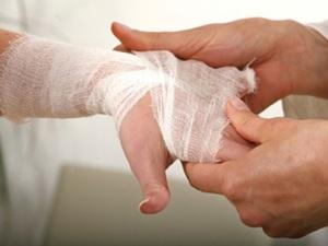 Рецепти за лечение на порезни рани