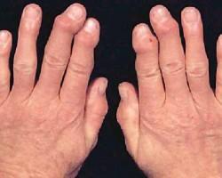 Народни лекове при артрит