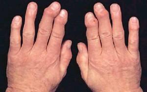 Един от най-ефикасните народни лекове при артрит съдържа чесън, мед и ябълков оцет