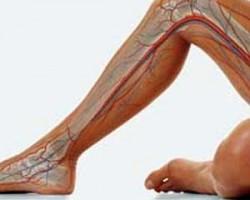 Болката в краката е сигнал за сериозна опасност