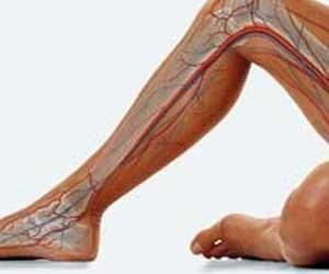 Болката в краката може да доведе до аневризма