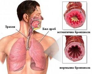 Съществува ефикасно лечение при бронхиална астма