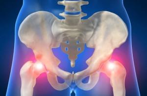 Тези методи ще ви избавят от болката, която причинява коварната коксартроза