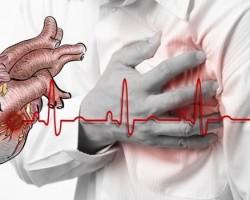 Спасяване от инфаркт за минута