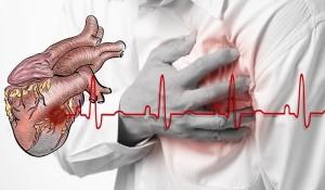 Уникален метод за спасяване от инфаркт за минута