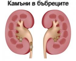 Народен лек при камъни в бъбреците