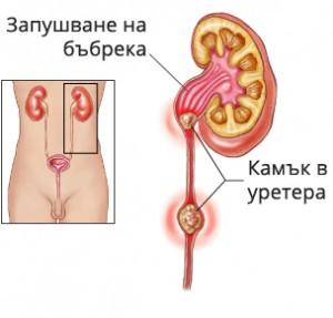 Този лек при пиелонефрит и бъбречна криза е препоръчан от Петър Дънов
