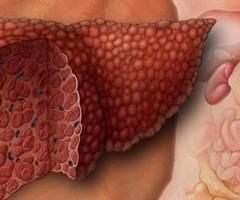 Народен лек при чернодробна стеатоза