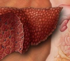 Народният лек при чернодробна стеатоза има отлично действие