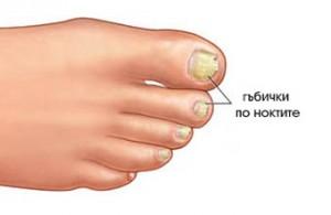 Гъбичната инфекция на ноктите може да бъде унищожена с оцет и сода