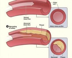 Основно прочистване на кръвоносните съдове