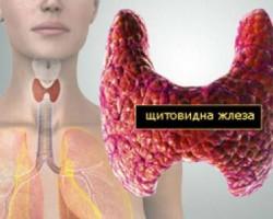 Тези симптоми издават болестите на щитовидната жлеза