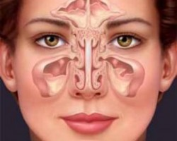 Изпитани народни лекове при синузит